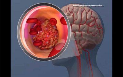 El Ictus es la primera causa del daño cerebral